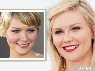 Kirsten Dunst's Smile Makeover: From Crooked to Confident