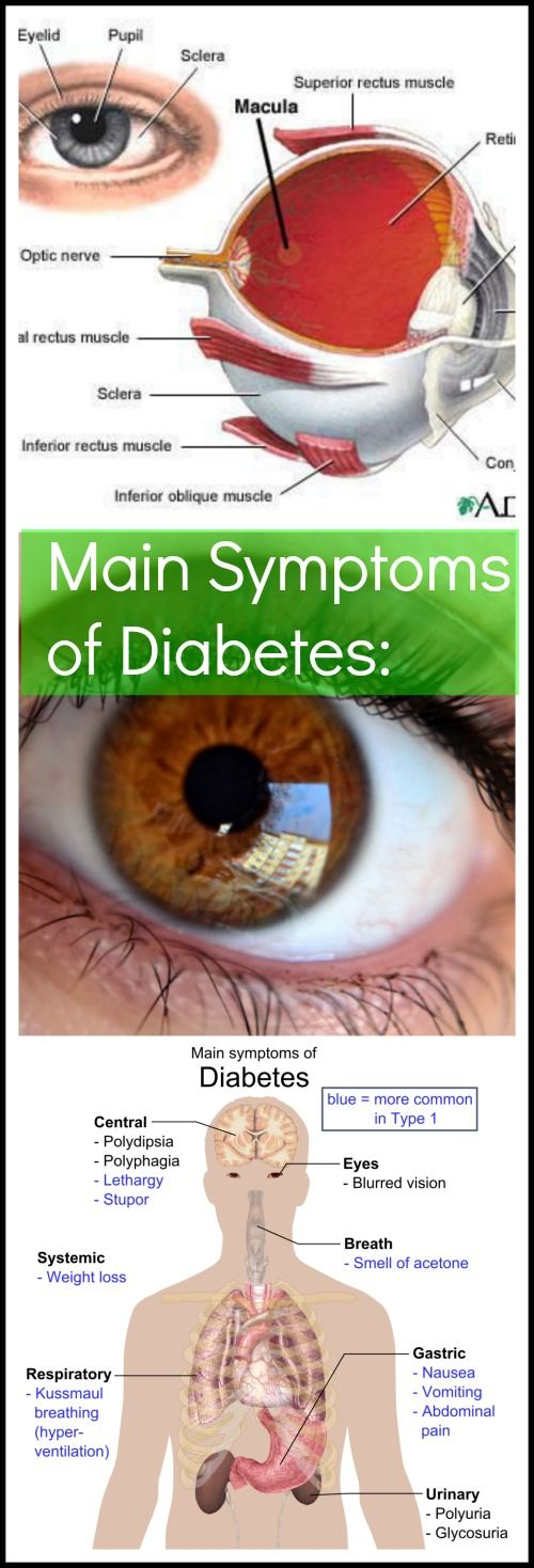 CLICK HERE for SPECIAL REPORT about Main #Symptoms of #Diabetes