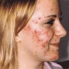 Acne care usually pertains to both treatments used to bring the problem beneath control and also to daily hygiene principles that you follow so that you can make acne manageable. You will find lots of acne remedies right now obtainabl