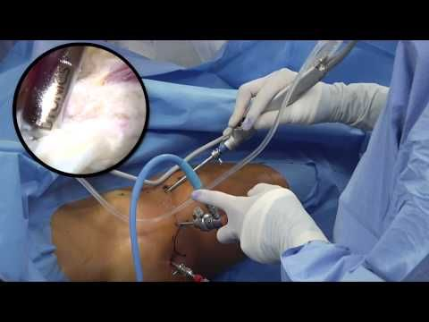 ▶ Hip Arthroscopy From Fundamentals to FAI and Labral Repair by JW Thomas Byrd MD - YouTube