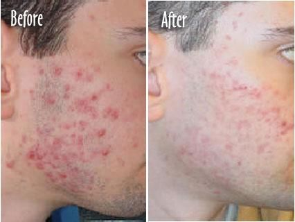 There are a large number of people who experience skin problems at some point in their lifetime, some of the most common are acne, acne scarring, eczema, stretch marks, Scars, Psoriasis, Rosaces, skin tightening Thread veins and wrinkles. All of these conditions will benefit greatly from laser skin rejuvenation techniques. Suffering from any skin problem can easily lead to the development of anxiety and lose some confidence. With... FULL ARTICLE @ http://www.acne-solution-manchester.co.uk/