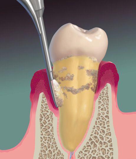 62 Best Dental Implants Ppt Images On Pinterest Dental