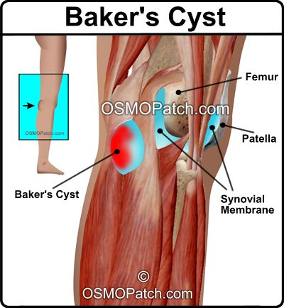 The OMSO Patch is ideal treatment for reducing the swelling and pain associated with a baker's cyst without using syringe, steroids or invasive procedures