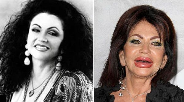 Extreme Plastic Surgery: Jackie Stallone, mother of Sly Stallone, has gone overboard with the plastic surgery in a serious way.