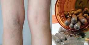 4 rimedi contro le vene varicose | Rimedio Naturale