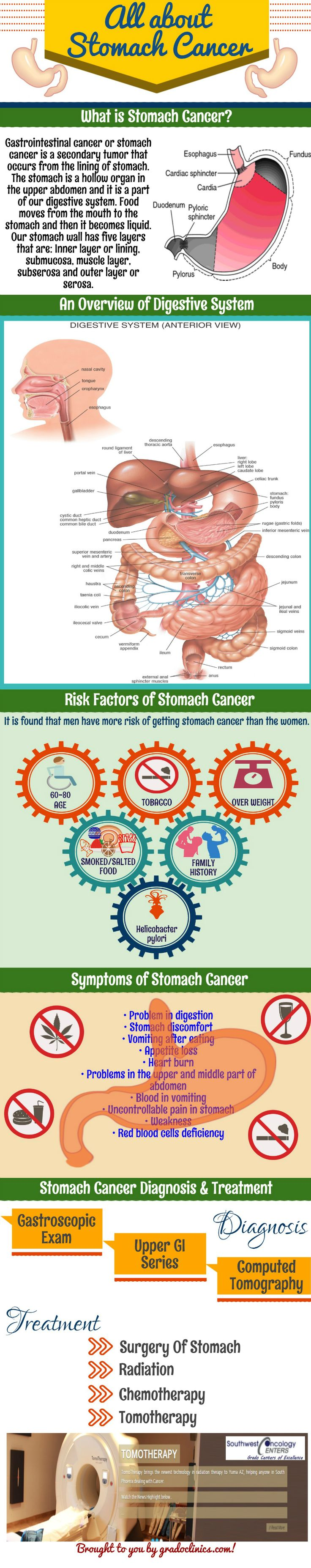 Stomach Cancer is malignant cancer occurs in stomach. Know all about the stomach cancer or gastric cancer.