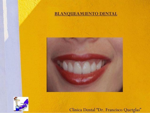 """Absolutamente tu decides,y a tu conveniencia ! Tenemos Blanqueamientos Dentales, ya sea para que te los hagas tu en casa; o sino, si lo prefieres,nosotros te los hacemos en Clínica Dental """"Dr. Francisco Quetglas"""" en 1 o 2 citas. Clic en la imagen o en """"visitar sitio"""""""