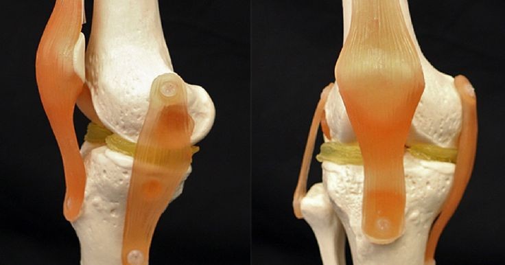 Researchers have created a new type of 3D bioprinting material designed to form custom cartilage knee implants.