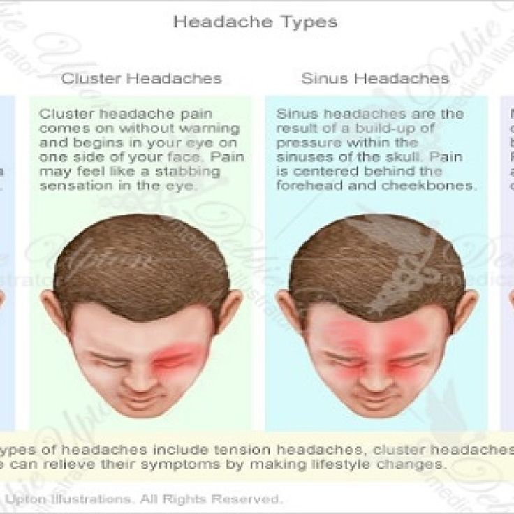 types of headaches chart