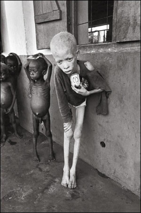 Starving child in Biafra, Nigeria during the Nigerian Civil War, 1969