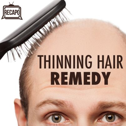 Hairmax Laser Comb Review, Minoxidil & Toppik for Thinning Hair   Recapo re The Dr Oz Show