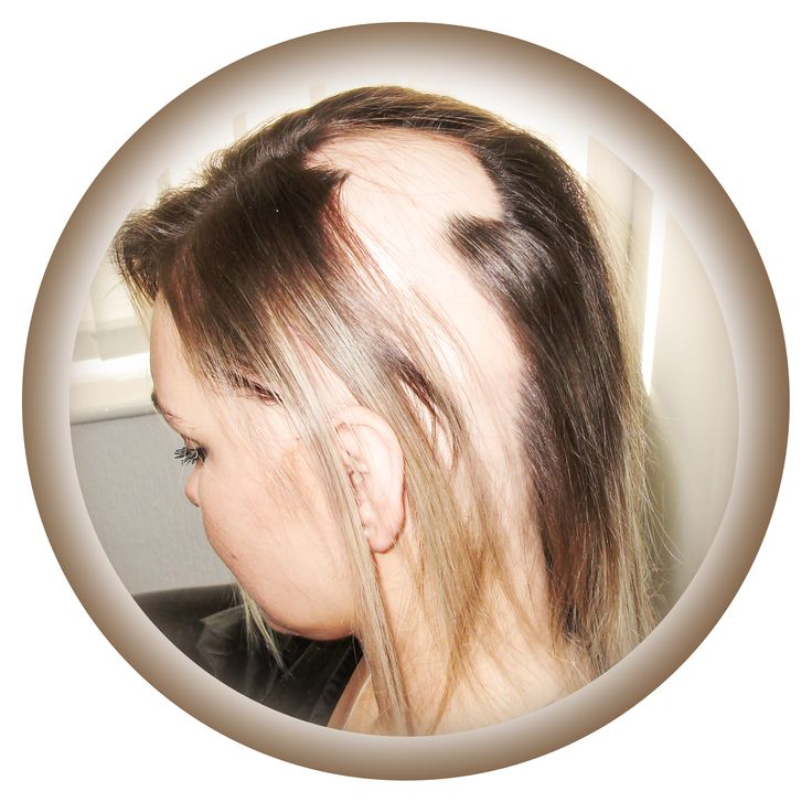 the hair loss disease alopecia areata essay Alopecia universalis is an autoimmune disease that causes complete hair loss on the scalp and the body  au is a type of alopecia areata  which causes patches of hair loss, and alopecia .