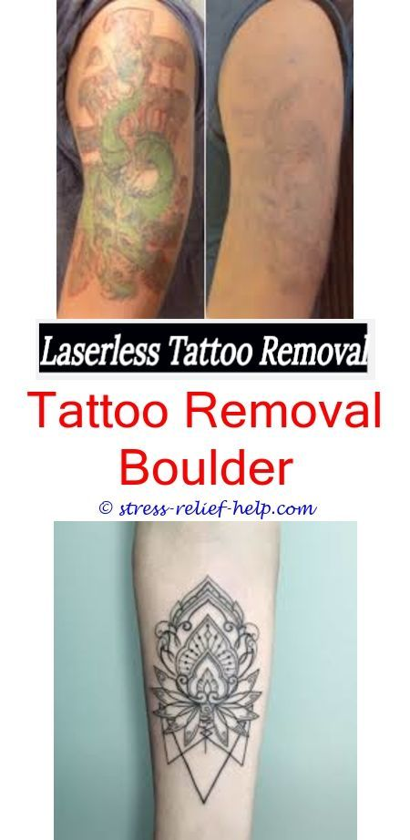 Can Tattoo Removal Ruin Hairhow To Remove Temporary Tattoos Easy