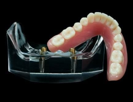 pret proteza dentara