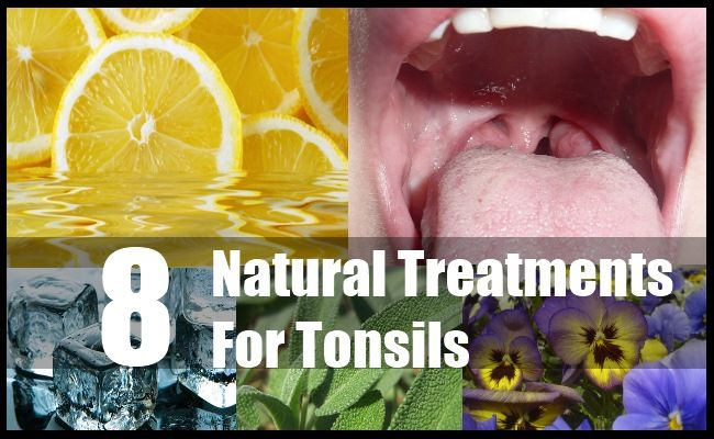 8 Beneficial Natural Treatments For Tonsils