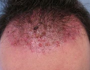 13 Best Pimple Like Bumps On Scalp Images On Pinterest