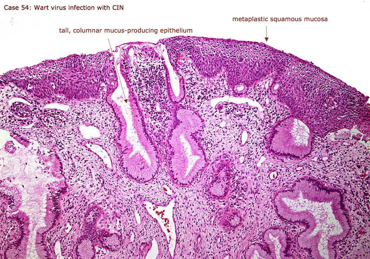 Wart virus infection with cervical intraepithelial neoplasia (CIN)