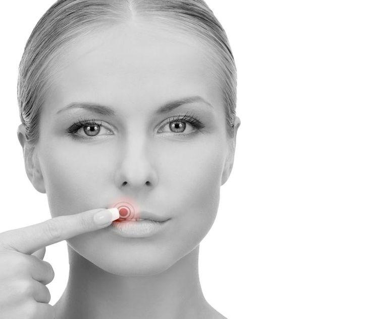 Cura el herpes labial con este simple truco con ajo