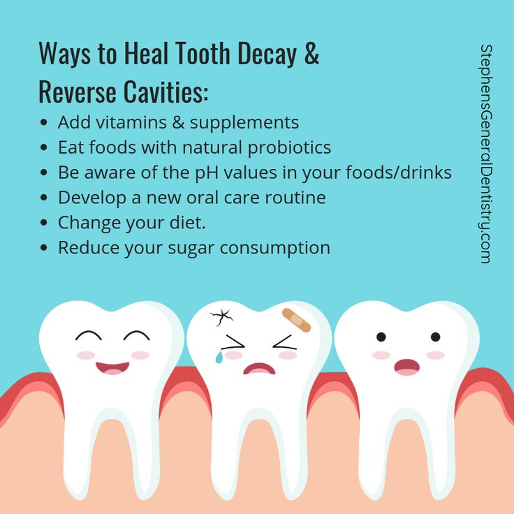 Now that you know a few natural ways to heal tooth decay