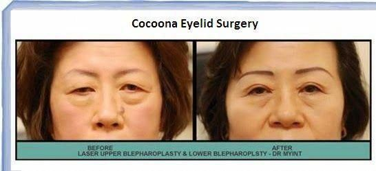 Blepharoplasty surgery and its cost in India: What you