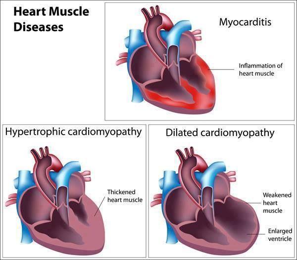 Heart Muscle Diseases.  Myocarditis, hypertrophic cardiomyopathy & dilated cardiomyopathy.  Photo curtesy: EMT/Paramedic FB.