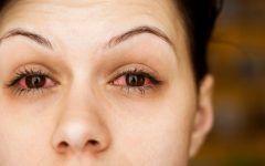 Alergias Oculares – Causas, Sintomas e Tratamentos Sergio