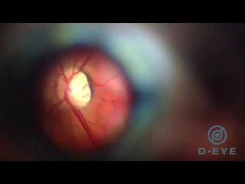 D-Eye: mobile app e cloud per lo screening della retina. Intervista ad Andrea Russo | Social in Lab