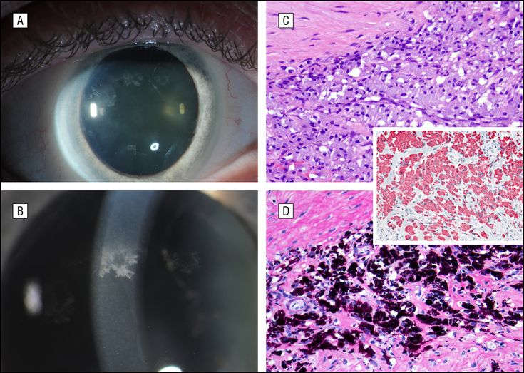 Whipple Disease With Crystalline Keratopathy and Chronic Uveitis. Arch Ophthalmol. 2012;130(9):1212. doi:10.1001/archophthalmol.2012.154.