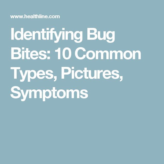 Identifying Bug Bites: 10 Common Types, Pictures, Symptoms