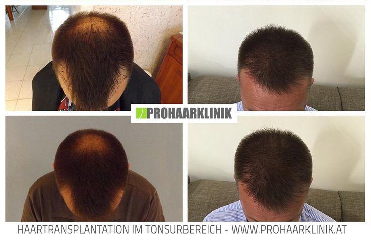 Haartransplantation Vorher Nachher  http://www.prohaarklinik.at/haartransplantation-vorher-nachher-bilder/