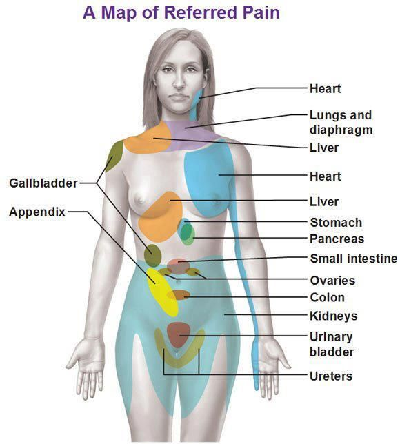 ozzies-world:  A map of referred pain, something nice to keep in mind when taking patient assessments.