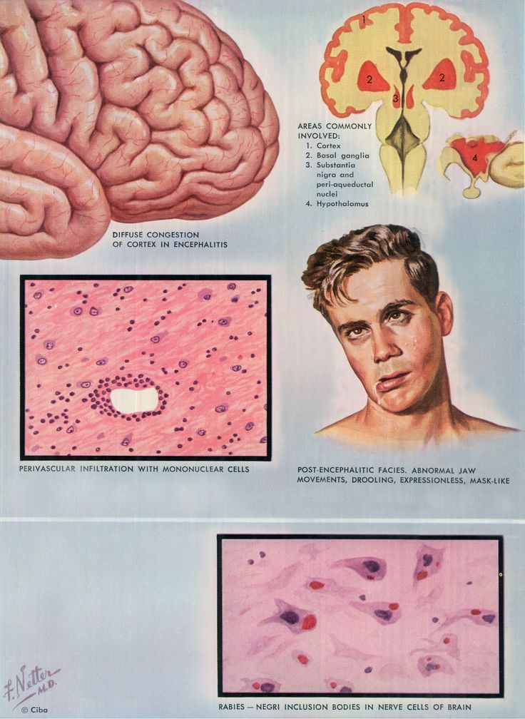 Doctoring The Craft Of Medical Illustration – The Work Of Frank H. Netter, M.D.