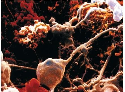 scanning electron micrograph of brain cells
