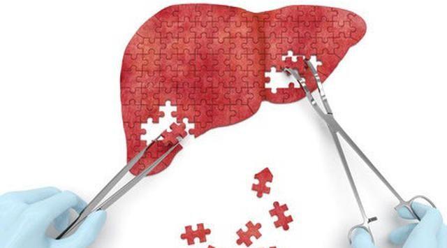 Obat Herbal Gagal Hati Hepatsure Capsule ini diolah langsung oleh para pakar ahli kesehatan dunia dengan menggunakan teknologi yang canggih dan modern http://grosirgreenworld.com/cara-alami-mengobati-gagal-hati/