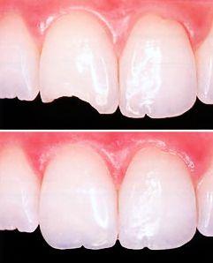 ¿Caries, fractura de diente o necesidad de reemplazo de amalgamas? Las resinas dentales son la solución más estética pues se adaptan al color del esmalte http://www.medicoplastica.com/odontologia/estetica-dental/restauracion-dental/resinas