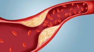Be Balanced: Must Read! New Dietary Guidelines for Cholesterol