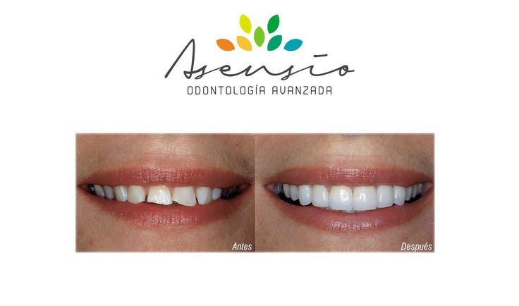 Lumineers case. Asensio. Dentist Abroad Spain. Before and After