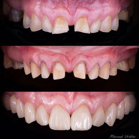 Case from @manuelurenag -  Initial situation - Preparation - Final result  #dentistry #alldent #dentalschool #estheticdentistry #canada #usa #france #germany #italy #russia #brasil #uda #odontologia #zahnmedizin #zahnarzt #zahni #zahn #smile #smilemakeover #sonrisa