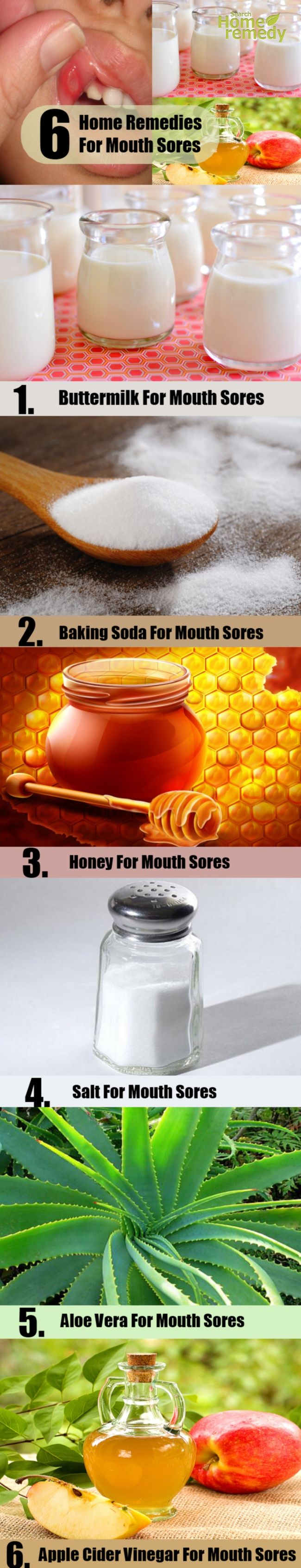 6 Mouth Sores Home Remedies Natural Treatments And Cures | Search Home Remedy