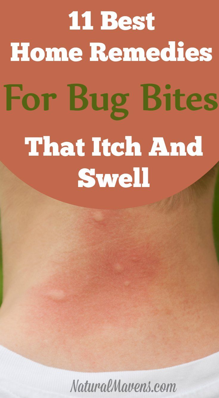 Stop itching and swelling with these natural home remedies for bug bites.  Some you will already have on hand.