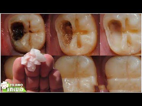 Ningún Dentista Quiere Que Sepas Sobre Este Remedio Te Quita La Caries Sin Dolor !Guárdalo Antes D - YouTube