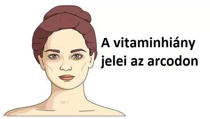 5 jelzés az arcodon, amely azt mutatja, hogy vitaminhiányod van
