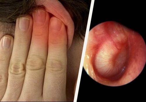 Dolor Oidos.-Cuando hay exceso de cerumen en los oídos la persona puede sufrir los siguientes síntomas: Comezón del canal auditivo Plenitud o sensación enchufado Mareo Zumbido en el oído Secreción del canal auditivo Disminución de la audición Dolor de oídos