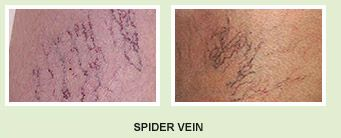 GynaeMD Women's & Rejuvenation Clinic in Singapore provides vein removal treatment through the latest technology NOVAPlus 3R IPL and this technology is safe & effective for vein removal. Know more about vein removal treatment at http://www.gynaemd.com.sg/aesthetics_vein_removal.html