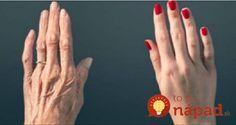 Ruky prezrádzajú náš vek. Jednoduchý trik, ako zabrániť ich predčasnému starnutiu!
