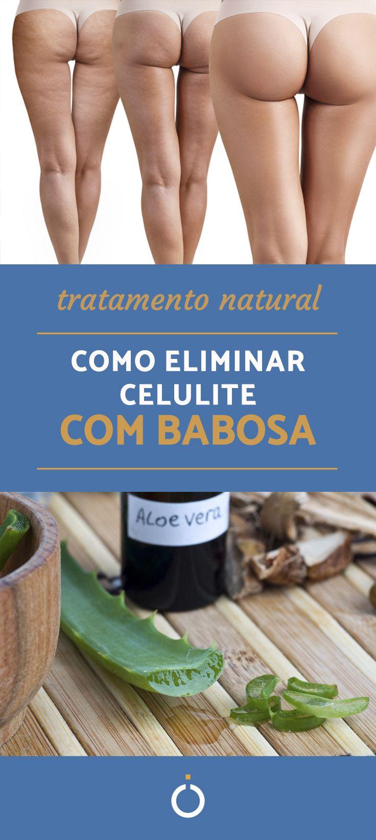 Uma opção natural e eficaz para acabar com a pele casca de laranja! Confira esse tratamento caseiro para acabar com celulite com babosa e descubra o poder da planta!  #celulite #beleza #remédionatural #tratamento #pele #pernas #glúteos