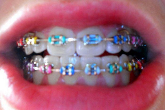 Rainbow Braces to Beautify Your Teeth | Teeth Braces Ideas