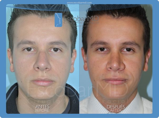Antes después  rinoplastia y mentoplastia Bogotá, Colombia www.escobarmd.com / Before and after Rhinoplasty and mentoplasty in Bogota, Colombia http://www.escobarmd.com/en/mentoplasty-or-chin-surgery-in-colombia.html