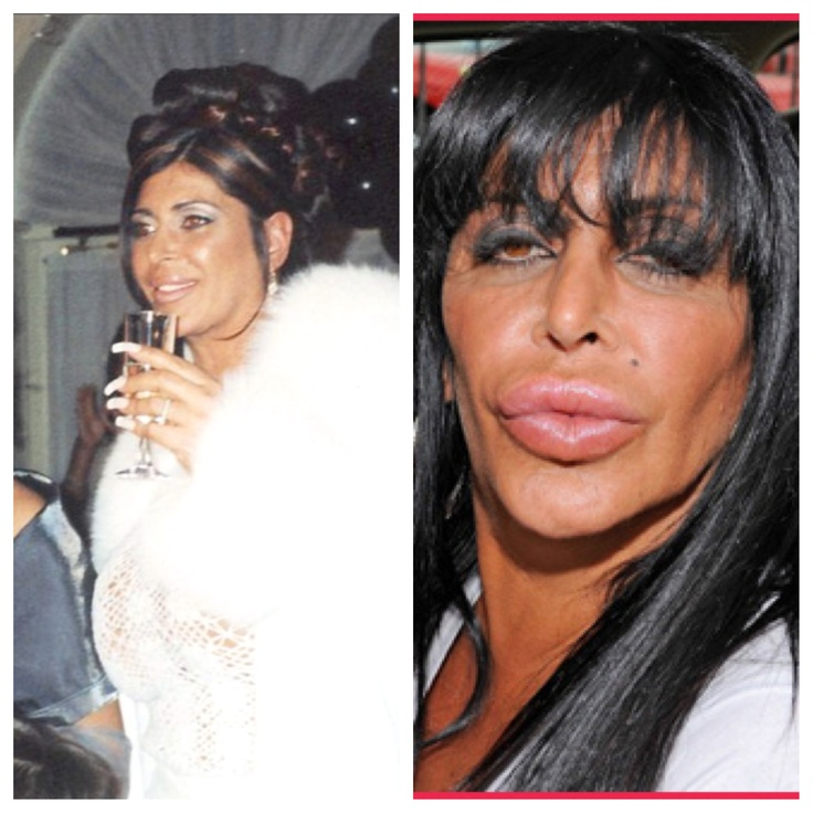 Big Ang ~Mob Wives- plastic surgery or sex change....wtf!?