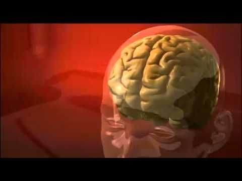 """ADHD and the Brain - Find out how the ADHD brain differs from a """"normal"""" brain and how that may affect behavior. (3 1/2 minutes - 2010)"""